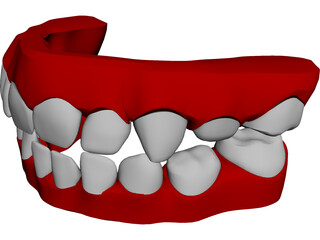 Teeth Childs 3D Model 3D Preview